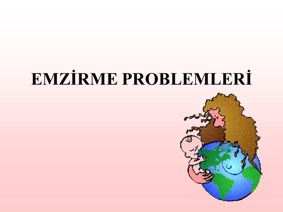 EMZİRME PROBLEMLERİ