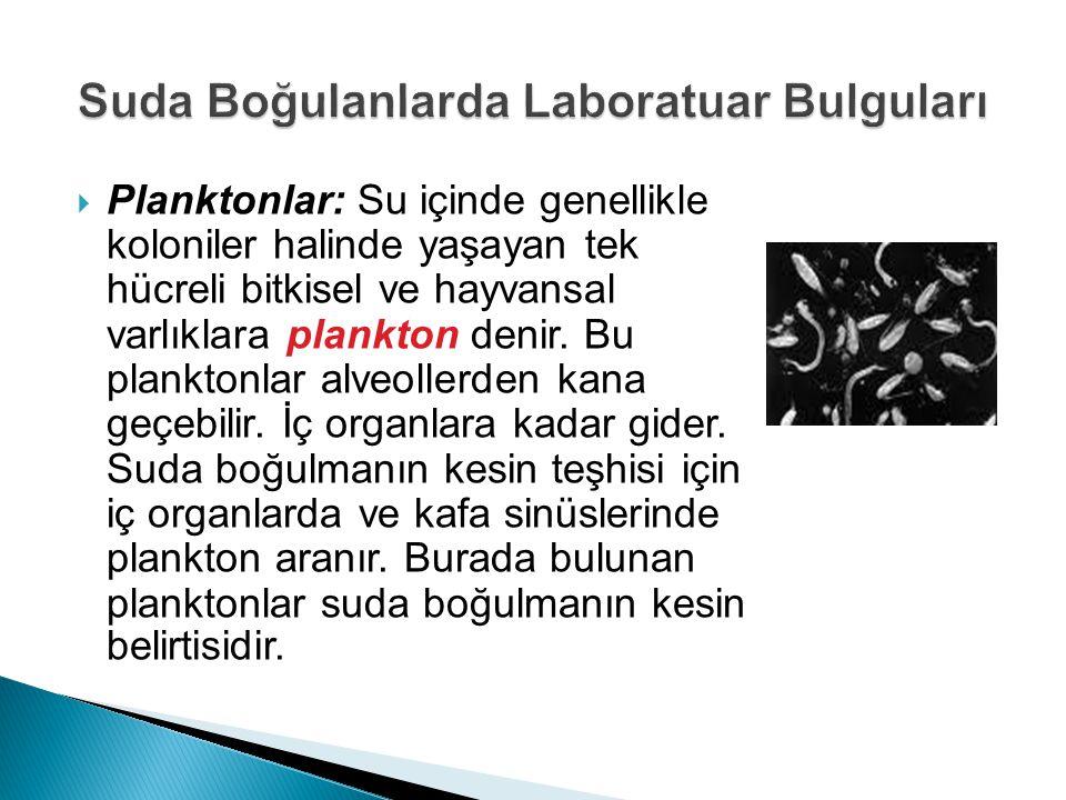  Planktonlar: Su içinde genellikle koloniler halinde yaşayan tek hücreli bitkisel ve hayvansal varlıklara plankton denir. Bu planktonlar alveollerden