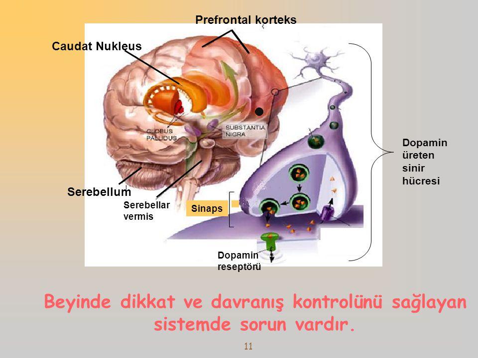 12  Dopamin, noradrenalin sisteminde bozukluk Arnsten AF.