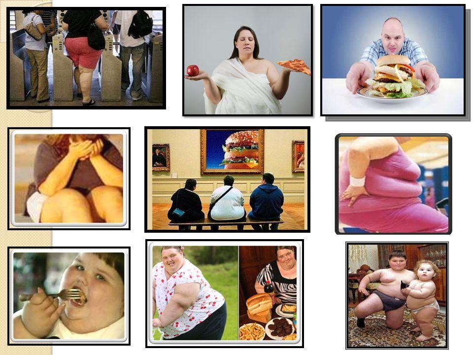 OBEZİTE Enerji alımı ile harcaması arasındaki dengenin bozulması ile sonuçlanan ve sıklıkla enerji yoğunluğu fazla besinlerin aşırı alımına bağlı olan bir durumdur.