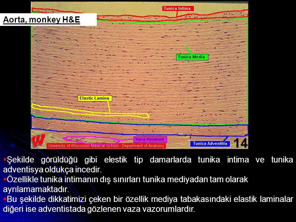 Aorta, monkey H&E  Şekilde görüldüğü gibi elestik tip damarlarda tunika intima ve tunika adventisya oldukça incedir.