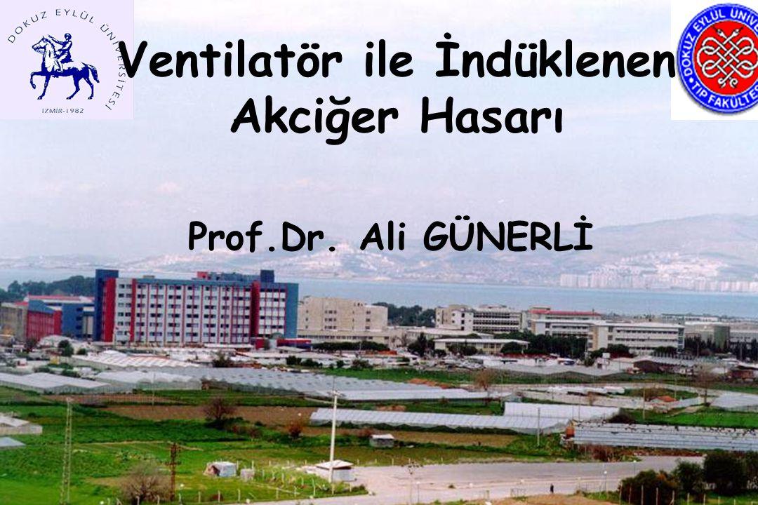 Ventilatör ile İndüklenen Akciğer Hasarı Prof.Dr. Ali GÜNERLİ