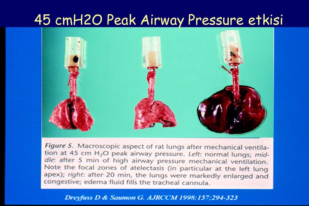 45 cmH2O Peak Airway Pressure etkisi