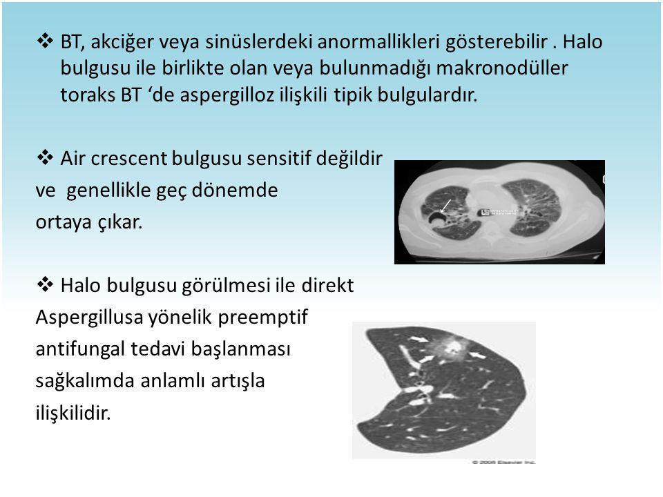  BT, akciğer veya sinüslerdeki anormallikleri gösterebilir. Halo bulgusu ile birlikte olan veya bulunmadığı makronodüller toraks BT 'de aspergilloz i