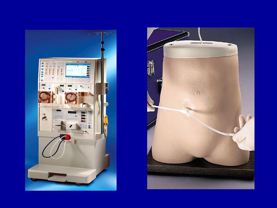 Akut diyaliz modalitesi seçimi •Solüt ve sıvı değişiklikleri daha yavaş gerçekleşir.