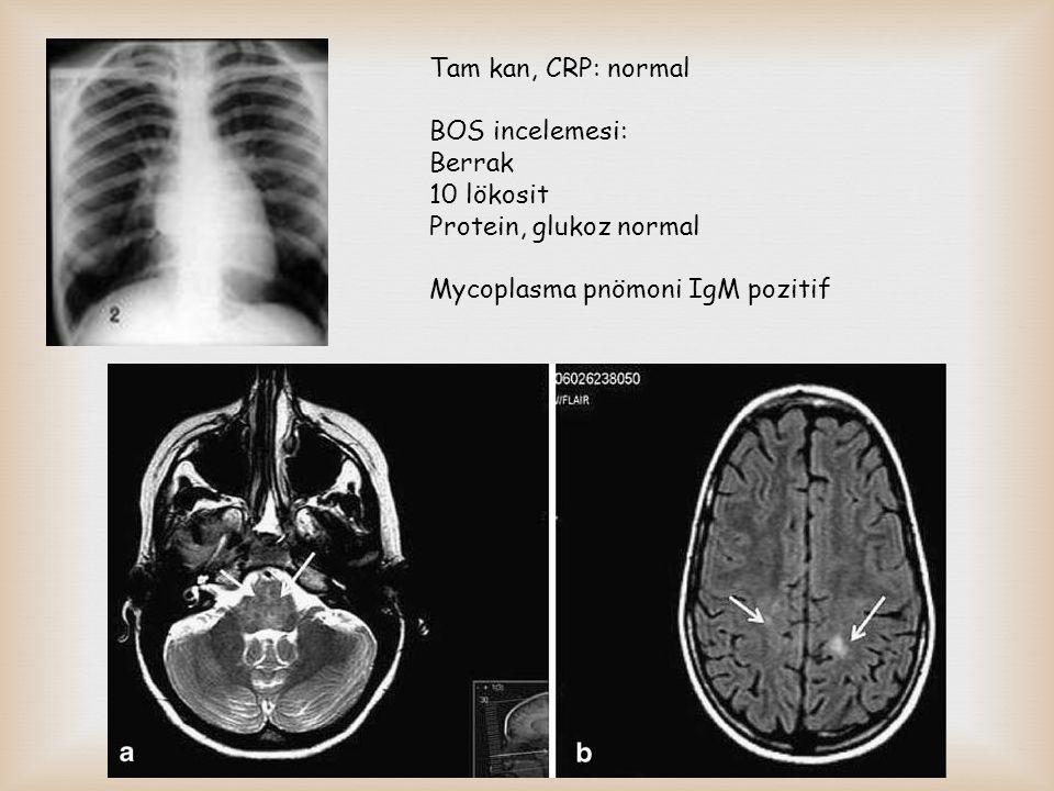 Tam kan, CRP: normal BOS incelemesi: Berrak 10 lökosit Protein, glukoz normal Mycoplasma pnömoni IgM pozitif