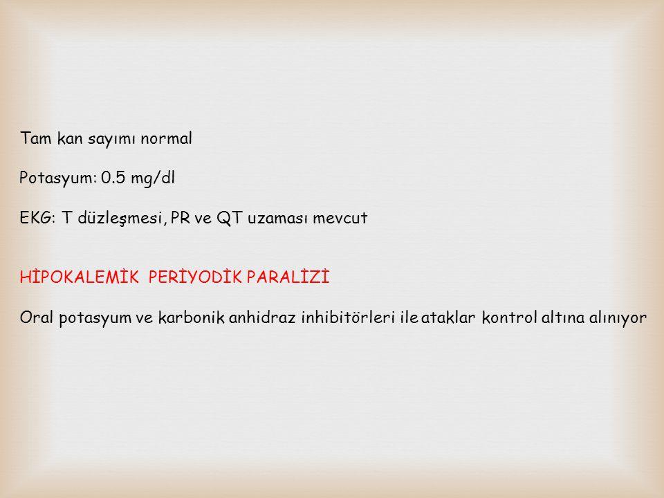 Tam kan sayımı normal Potasyum: 0.5 mg/dl EKG: T düzleşmesi, PR ve QT uzaması mevcut HİPOKALEMİK PERİYODİK PARALİZİ Oral potasyum ve karbonik anhidraz