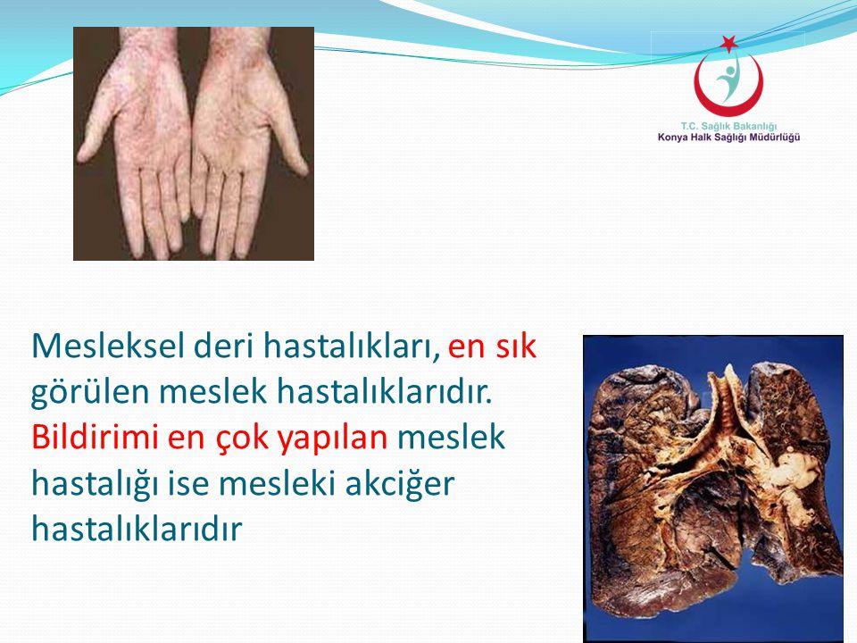 Mesleksel deri hastalıkları, en sık görülen meslek hastalıklarıdır. Bildirimi en çok yapılan meslek hastalığı ise mesleki akciğer hastalıklarıdır