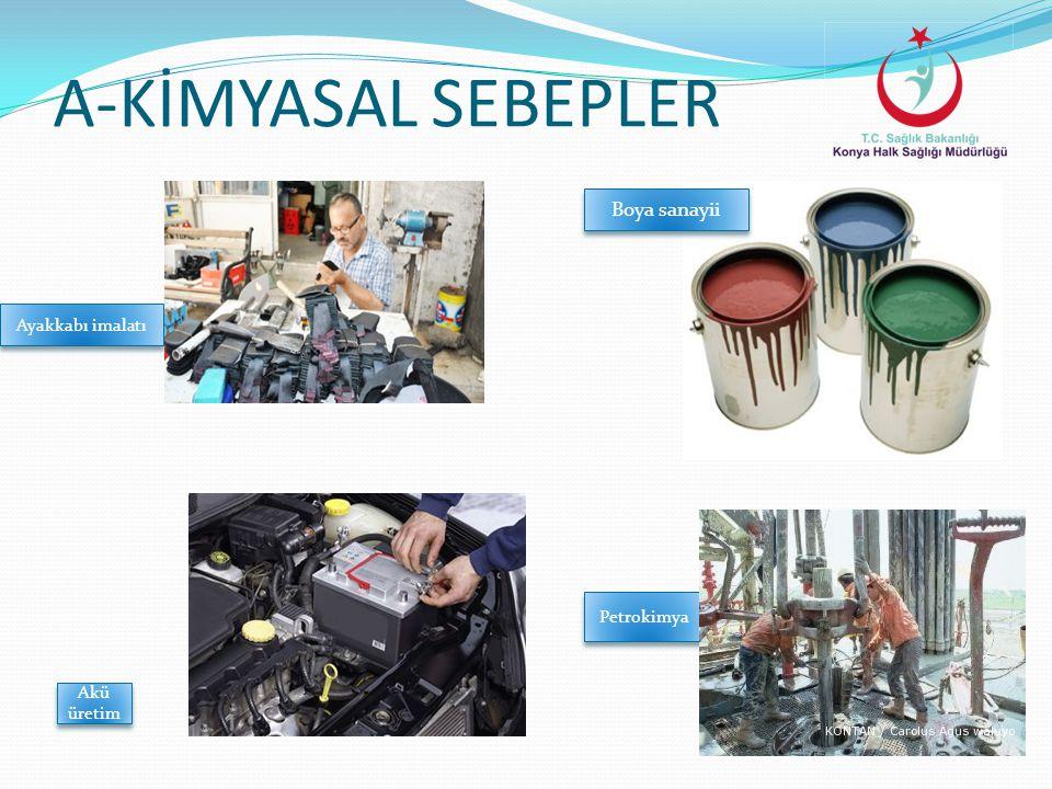 A-KİMYASAL SEBEPLER Boya sanayii Ayakkabı imalatı Akü üretim Petrokimya