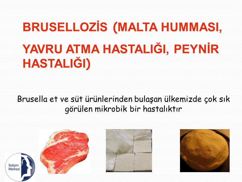 BRUSELLOZİS ( MALTA HUMMASI, YAVRU ATMA HASTALIĞI, PEYNİR HASTALIĞI ) Brusella et ve süt ürünlerinden bulaşan ülkemizde çok sık görülen mikrobik bir h