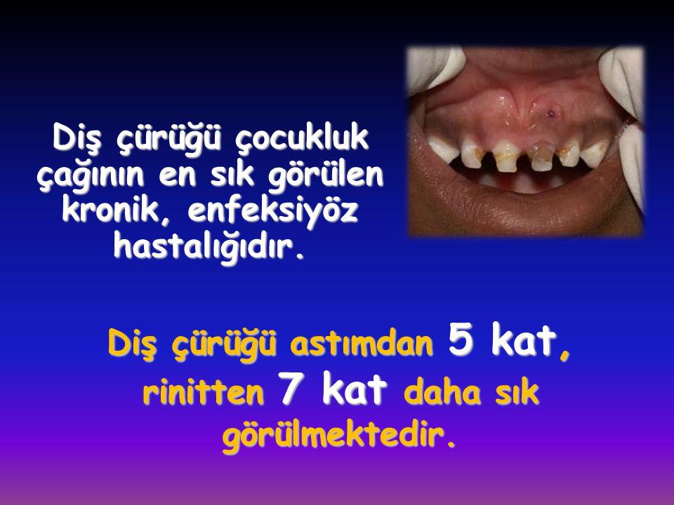 Diş çürüğü çocukluk çağının en sık görülen kronik, enfeksiyöz hastalığıdır. Diş çürüğü astımdan 5 kat, rinitten 7 kat daha sık görülmektedir.