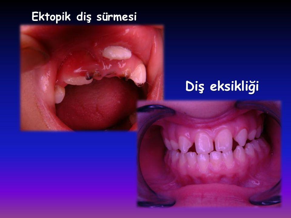 Ektopik diş sürmesi Diş eksikliği