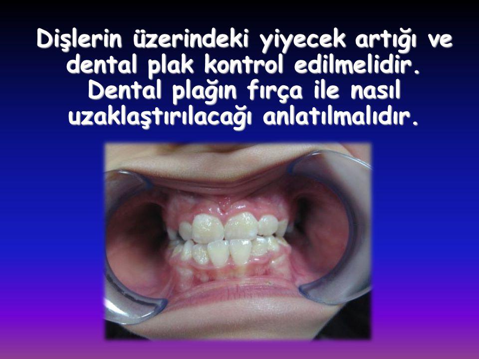 Dişlerin üzerindeki yiyecek artığı ve dental plak kontrol edilmelidir. Dental plağın fırça ile nasıl uzaklaştırılacağı anlatılmalıdır.