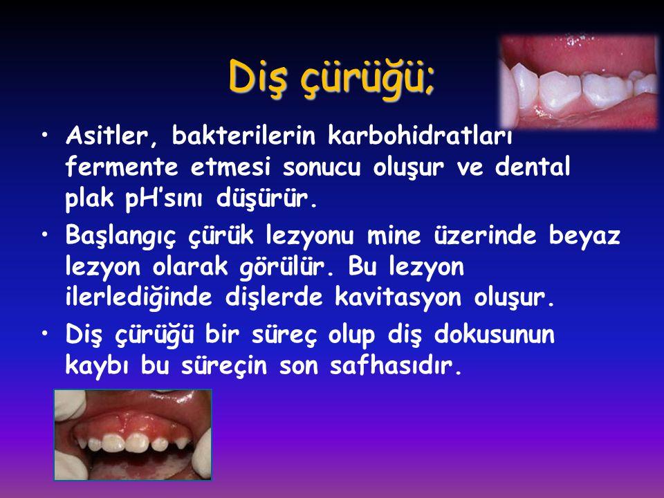 Diş çürüğü; •Asitler, bakterilerin karbohidratları fermente etmesi sonucu oluşur ve dental plak pH'sını düşürür. •Başlangıç çürük lezyonu mine üzerind