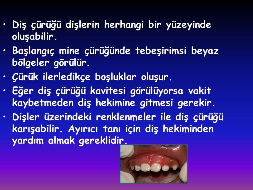 •Diş çürüğü dişlerin herhangi bir yüzeyinde oluşabilir. •Başlangıç mine çürüğünde tebeşirimsi beyaz bölgeler görülür. •Çürük ilerledikçe boşluklar olu
