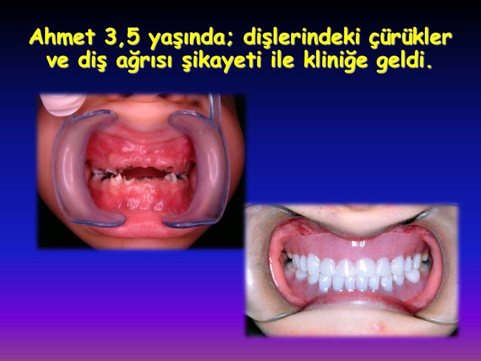 Ahmet 3,5 yaşında; dişlerindeki çürükler ve diş ağrısı şikayeti ile kliniğe geldi.