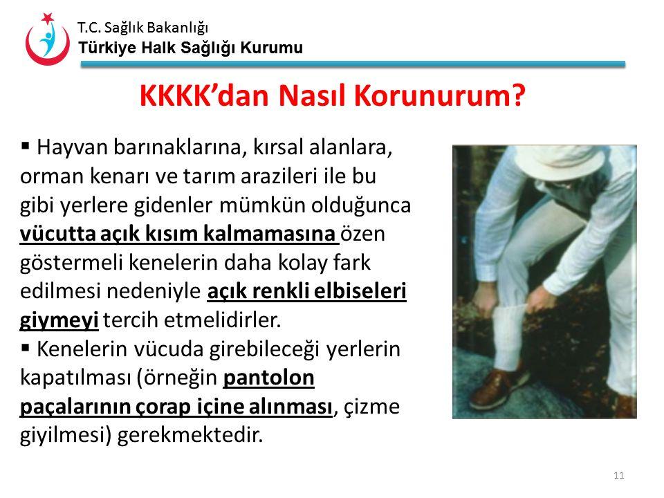 T.C. Sağlık Bakanlığı Türkiye Halk Sağlığı Kurumu T.C. Sağlık Bakanlığı Türkiye Halk Sağlığı Kurumu 10  Yüksek ateş,  Baş ağrısı,  Yoğun halsizlik,