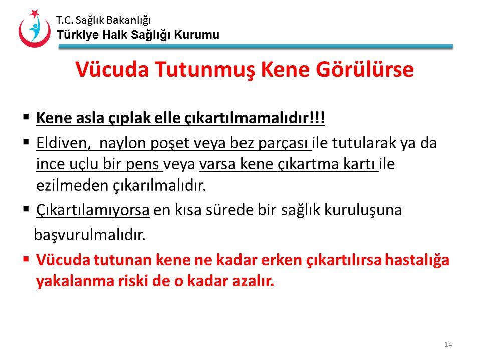T.C. Sağlık Bakanlığı Türkiye Halk Sağlığı Kurumu T.C. Sağlık Bakanlığı Türkiye Halk Sağlığı Kurumu 13 Kollar Bacaklar Gövde Koltuk altları Saç dipler
