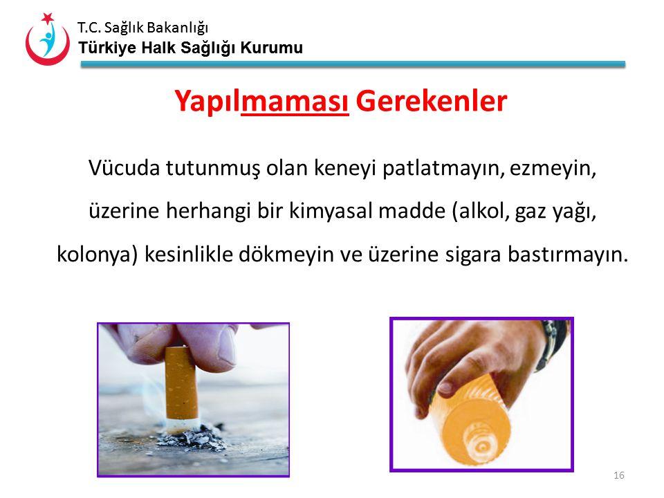 T.C. Sağlık Bakanlığı Türkiye Halk Sağlığı Kurumu T.C. Sağlık Bakanlığı Türkiye Halk Sağlığı Kurumu 15 Kenenin pens ile çıkarılması
