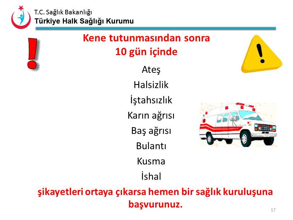 T.C. Sağlık Bakanlığı Türkiye Halk Sağlığı Kurumu T.C. Sağlık Bakanlığı Türkiye Halk Sağlığı Kurumu 16 Yapılmaması Gerekenler Vücuda tutunmuş olan ken