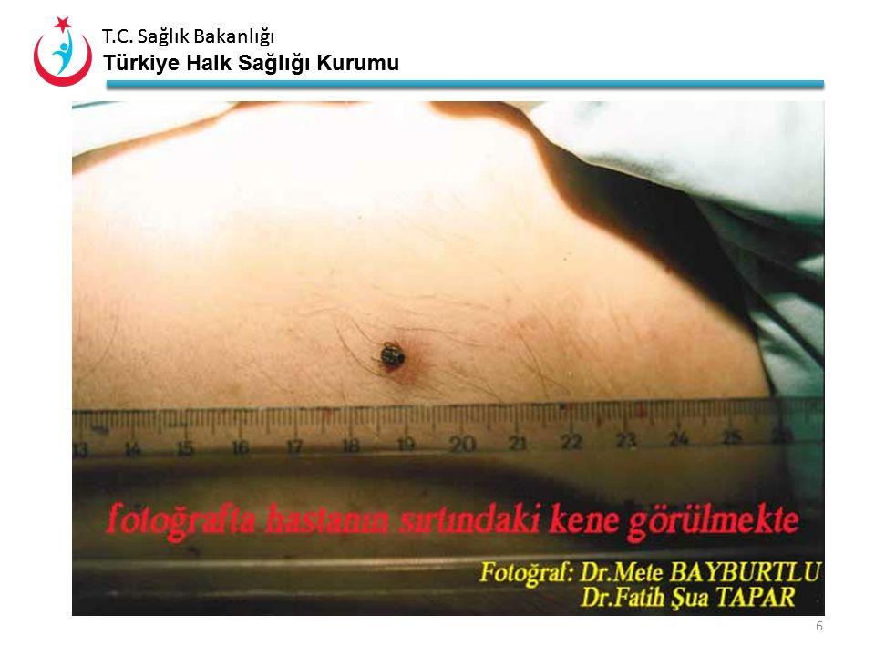 T.C. Sağlık Bakanlığı Türkiye Halk Sağlığı Kurumu T.C. Sağlık Bakanlığı Türkiye Halk Sağlığı Kurumu 5 LarvaNimfErkek Erişkin KeneDişi Erişkin Kene Nim