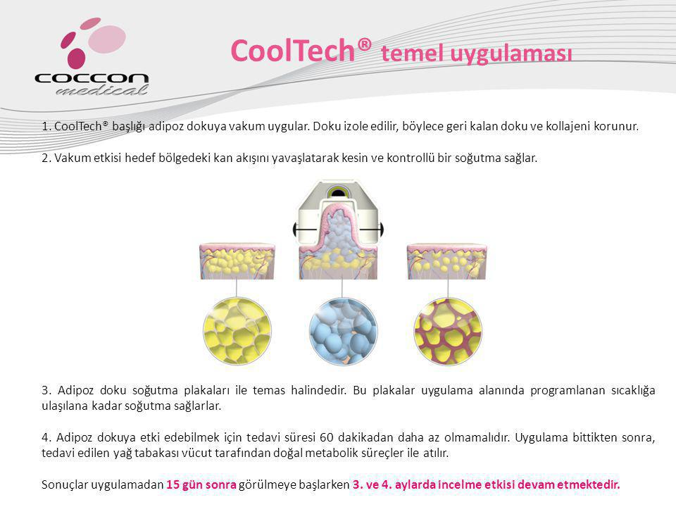 CoolTech® temel uygulaması 1. CoolTech® başlığı adipoz dokuya vakum uygular. Doku izole edilir, böylece geri kalan doku ve kollajeni korunur. 2. Vakum