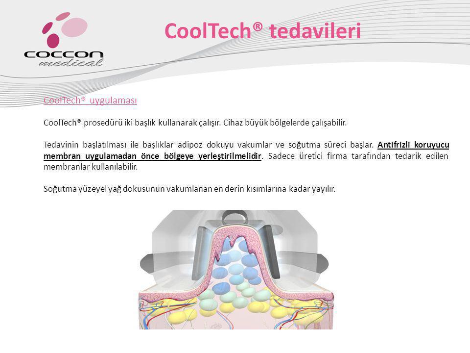 CoolTech® uygulaması Tedaviler 60 dakikadan daha az olmamalıdır.