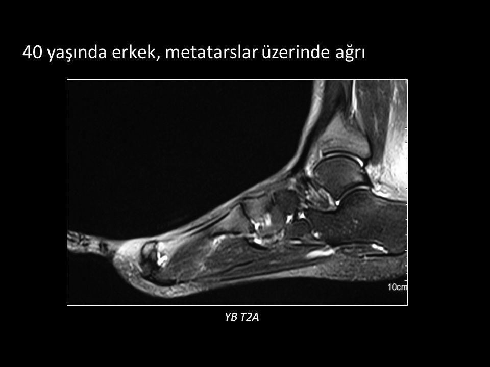 40 yaşında erkek, metatarslar üzerinde ağrı YB T2A