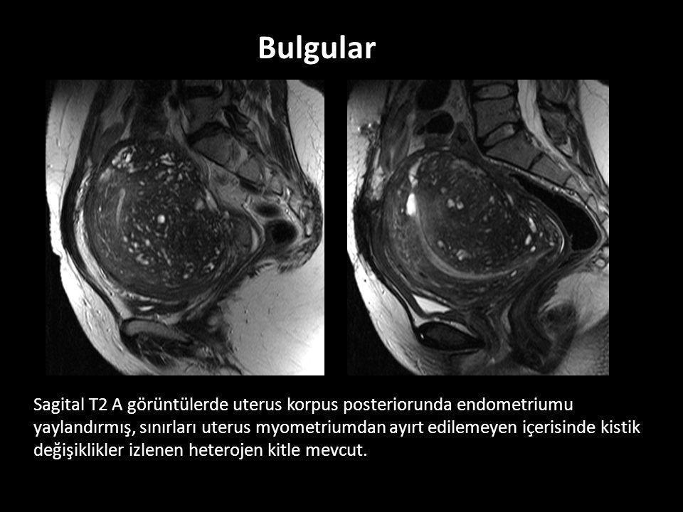 Sagital T2 A görüntülerde uterus korpus posteriorunda endometriumu yaylandırmış, sınırları uterus myometriumdan ayırt edilemeyen içerisinde kistik değişiklikler izlenen heterojen kitle mevcut.