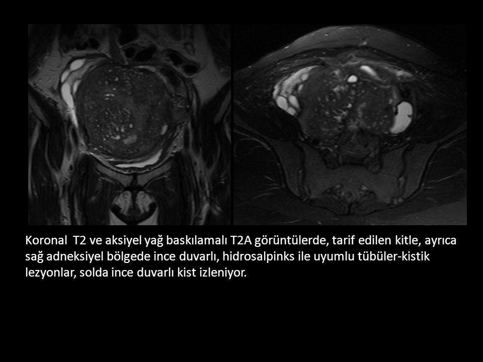 42 y kadın Yakınma: Sol memede kitle Fizik bakı: Sol alt dış kadranda palpabl kitle
