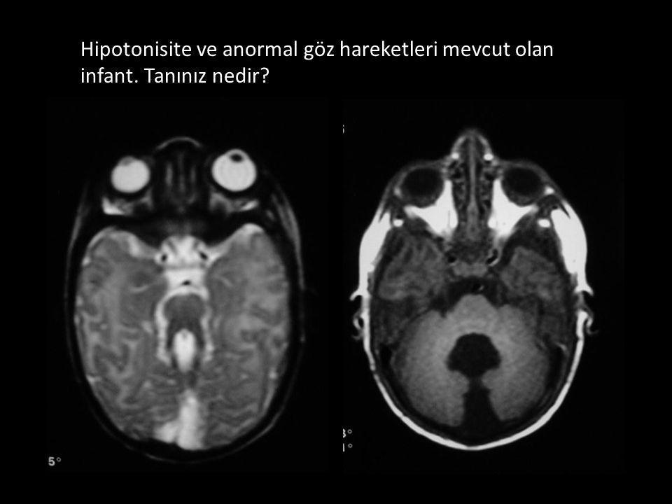 Hipotonisite ve anormal göz hareketleri mevcut olan infant. Tanınız nedir?