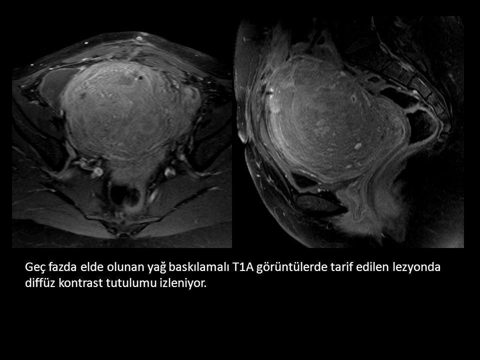 38 NAT: TANI • Uzun kemikler – Eski kırıklarla ilgili periostal yeni kemik oluşumları – Metafiz köşe veya epifiz plate kırıkları – Spiral diafiz kırıkları • Kostalar – %80' den fazlası okülttür ve iyileşme ile görülebilir hale gelir – Arka kot kırıkları özellikle düşündürücüdür • Kafa – Accidental kırıklar genellikle lineerdir – Non-accidental kırık özellikleri • Multipl/kompleks kırıklar • Çökme kırıkları, özellikle oksipital kemikte • Geniş kırıklar (> 5mm)