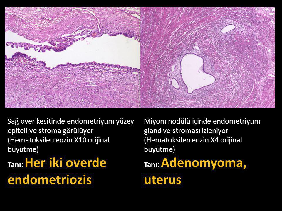 Sağ over kesitinde endometriyum yüzey epiteli ve stroma görülüyor (Hematoksilen eozin X10 orijinal büyütme) Tanı: Her iki overde endometriozis Miyom nodülü içinde endometriyum gland ve stroması izleniyor (Hematoksilen eozin X4 orijinal büyütme) Tanı: Adenomyoma, uterus