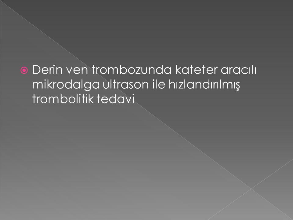  Derin ven trombozunda kateter aracılı mikrodalga ultrason ile hızlandırılmış trombolitik tedavi