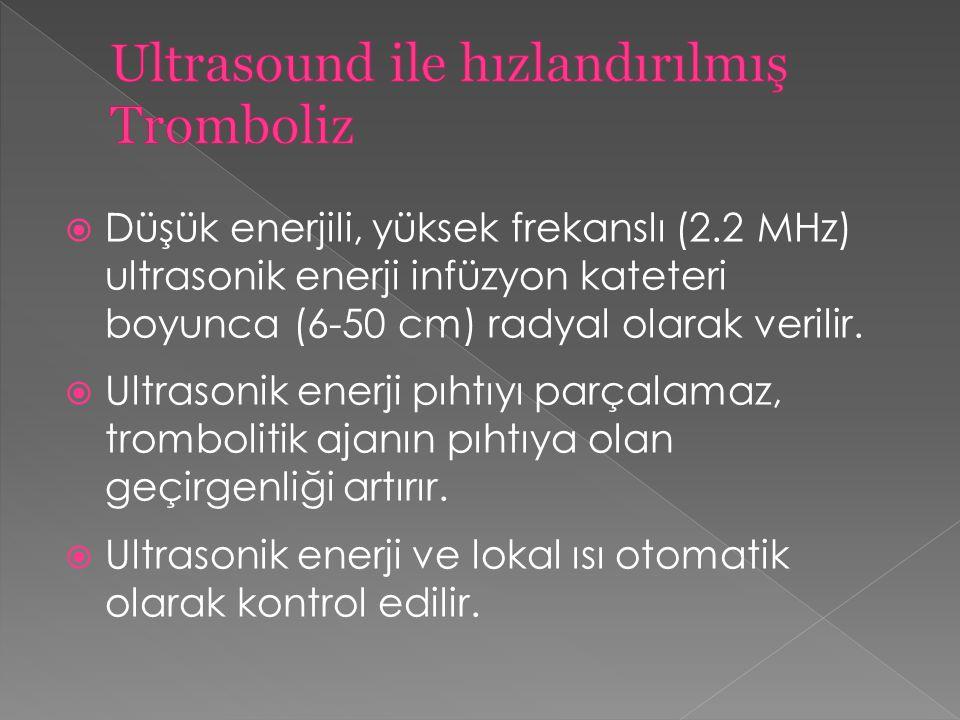  Düşük enerjili, yüksek frekanslı (2.2 MHz) ultrasonik enerji infüzyon kateteri boyunca (6-50 cm) radyal olarak verilir.  Ultrasonik enerji pıhtıyı