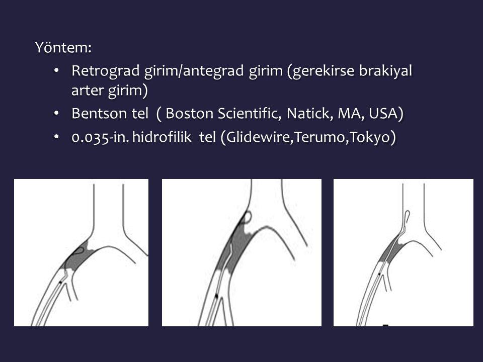 Yöntem: • Retrograd girim/antegrad girim (gerekirse brakiyal arter girim) • Bentson tel ( Boston Scientific, Natick, MA, USA) • 0.035-in.