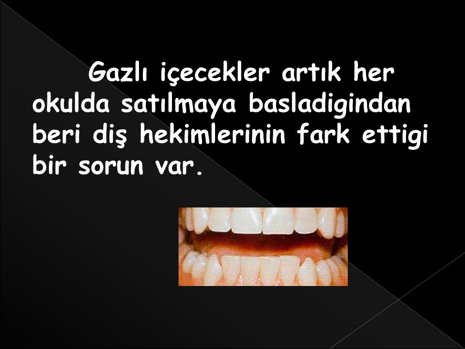 Aslında sadece yaşlılarda görülebilecek diş minesi kaybıyla, çocuklarin dişleri sararmaya başladı.