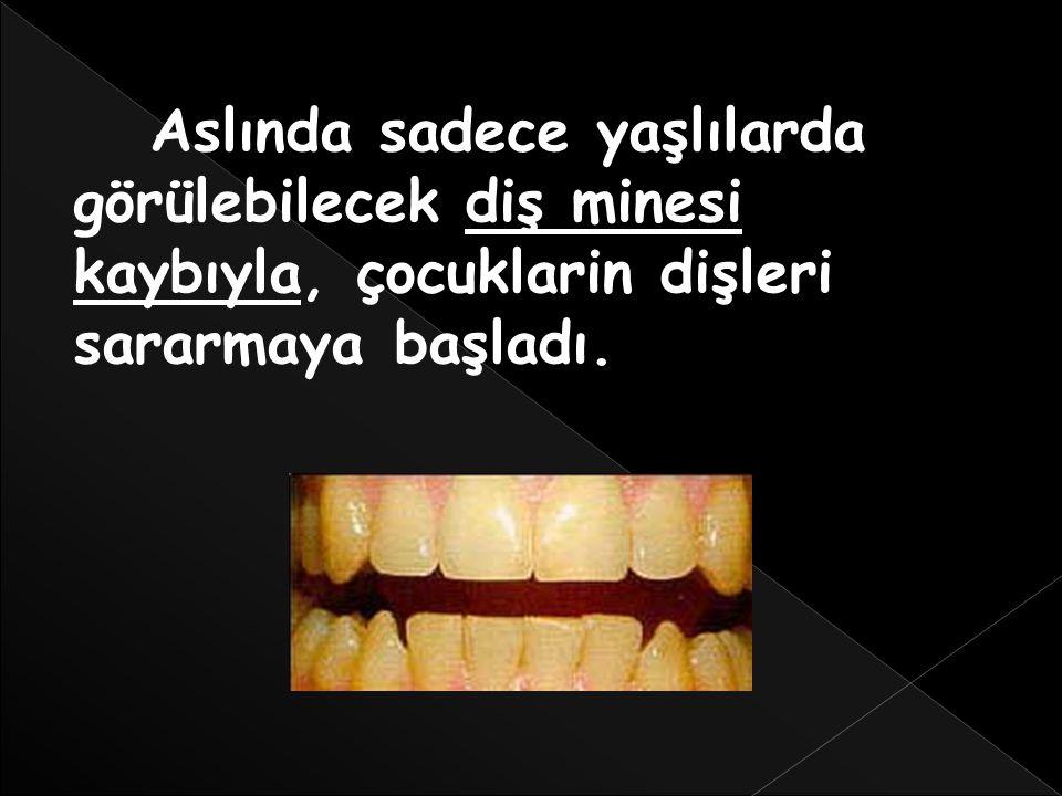 Bunun sorumlusu ise, diş çürümesinin yanı sıra sindirim sorunları ve kemik kaybına da yol açabilen fosforik asittir.