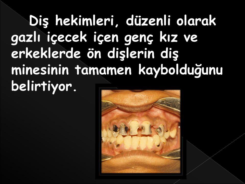 Diş hekimleri, düzenli olarak gazlı içecek içen genç kız ve erkeklerde ön dişlerin diş minesinin tamamen kaybolduğunu belirtiyor.