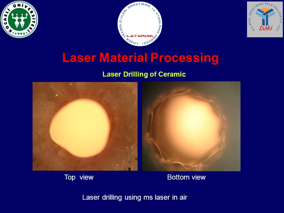 Laser Material Processing Laser Drilling of Ceramic Laser drilling using ms laser in air Top viewBottom view