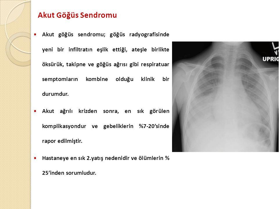 Akut Göğüs Sendromu  Akut göğüs sendromu; göğüs radyografisinde yeni bir infiltratın eşlik ettiği, ateşle birlikte öksürük, takipne ve göğüs ağrısı gibi respiratuar semptomların kombine olduğu klinik bir durumdur.
