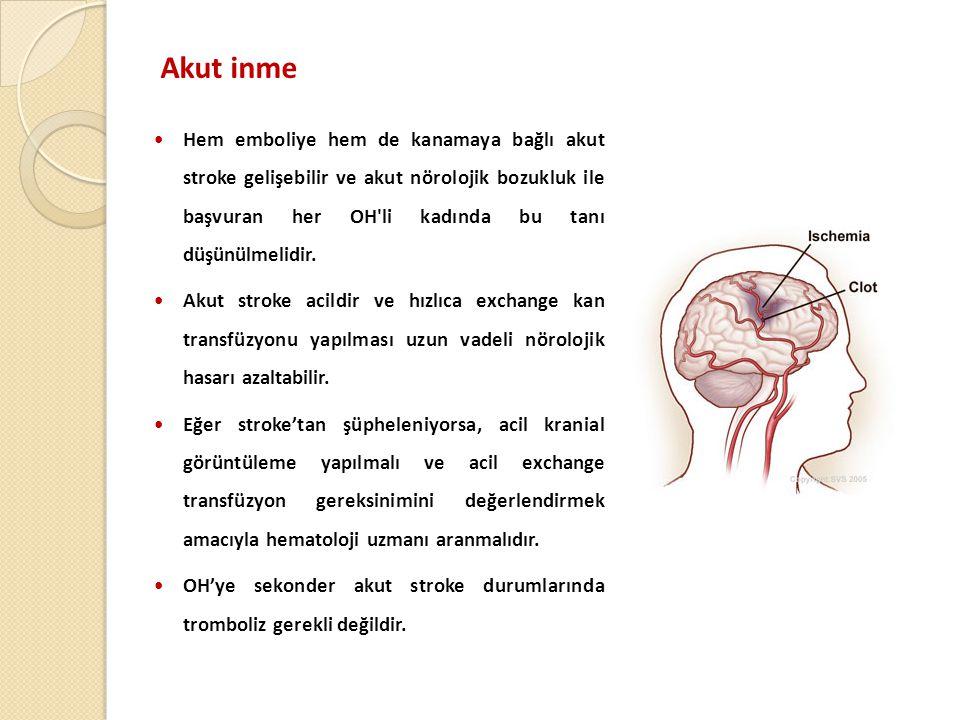 Akut inme  Hem emboliye hem de kanamaya bağlı akut stroke gelişebilir ve akut nörolojik bozukluk ile başvuran her OH li kadında bu tanı düşünülmelidir.