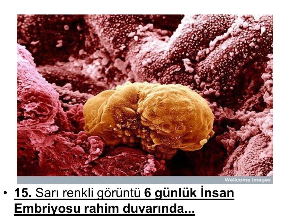 •15. Sarı renkli görüntü 6 günlük İnsan Embriyosu rahim duvarında... •