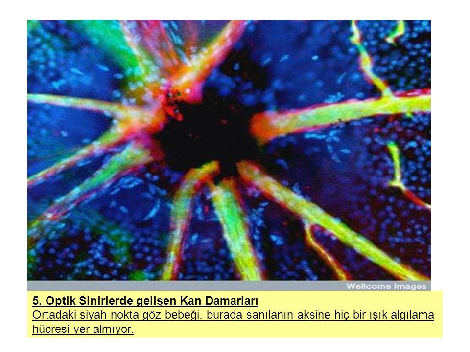 5. Optik Sinirlerde gelişen Kan Damarları Ortadaki siyah nokta göz bebeği, burada sanılanın aksine hiç bir ışık algılama hücresi yer almıyor.