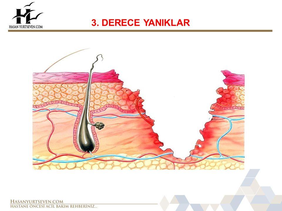 3. DERECE YANIKLAR
