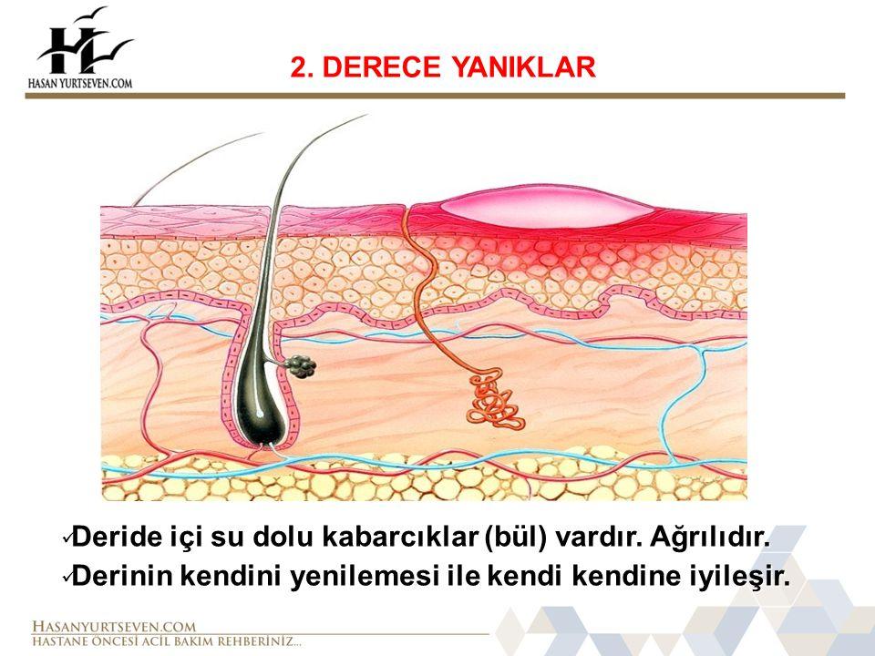 2.DERECE YANIKLAR  Deride içi su dolu kabarcıklar (bül) vardır.