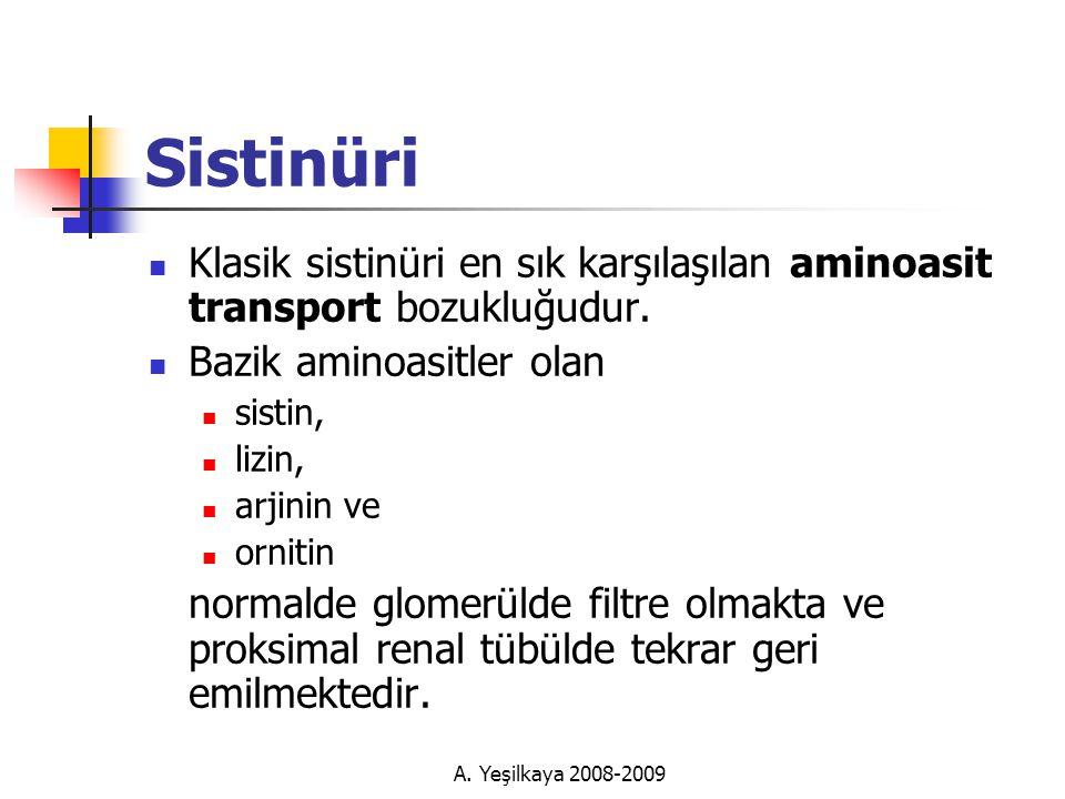 Sistinüri  Klasik sistinüri en sık karşılaşılan aminoasit transport bozukluğudur.