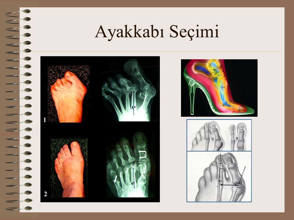 Ayakkabı Seçimi -BAY- •Bayanlardaki dar ve parmak kutusu yeterli yükseklikte olmayan ayakkabı problemi bay ayakkabılarında da geçerlidir.