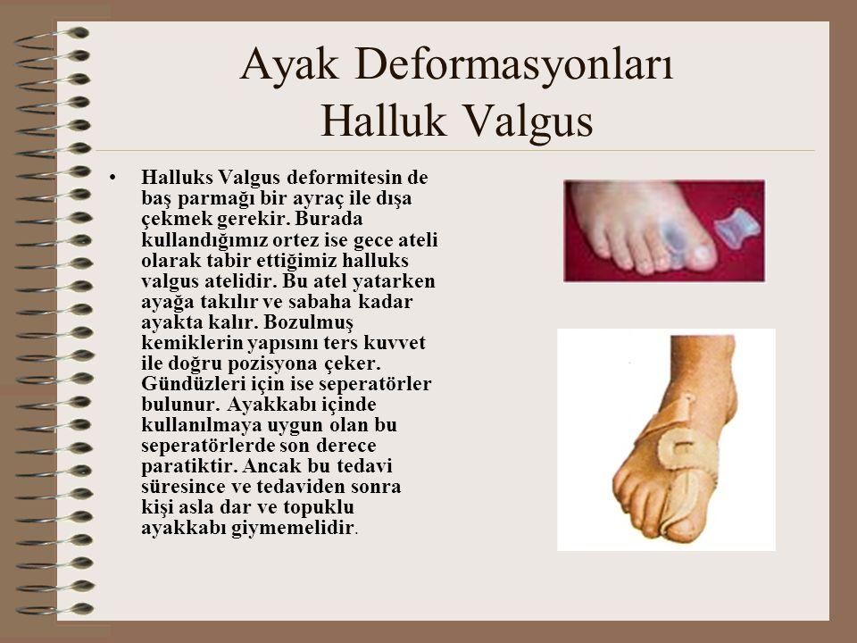 Ayak Deformasyonları Halluk Valgus •Halluks Valgus deformitesin de baş parmağı bir ayraç ile dışa çekmek gerekir. Burada kullandığımız ortez ise gece