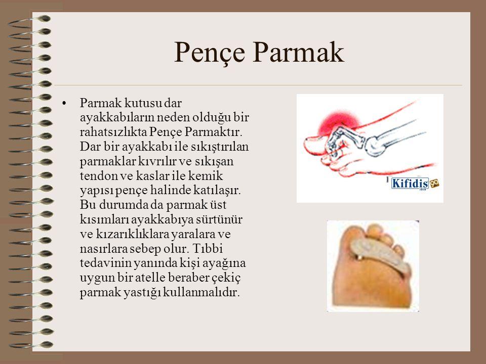 Pençe Parmak •Parmak kutusu dar ayakkabıların neden olduğu bir rahatsızlıkta Pençe Parmaktır. Dar bir ayakkabı ile sıkıştırılan parmaklar kıvrılır ve